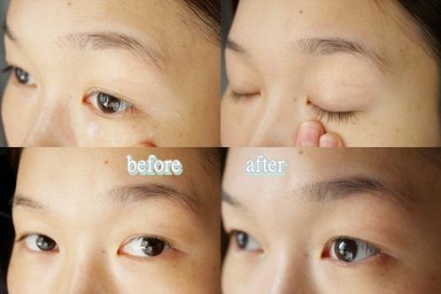 eyelift.11